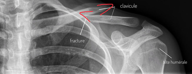 clavicule-fracture