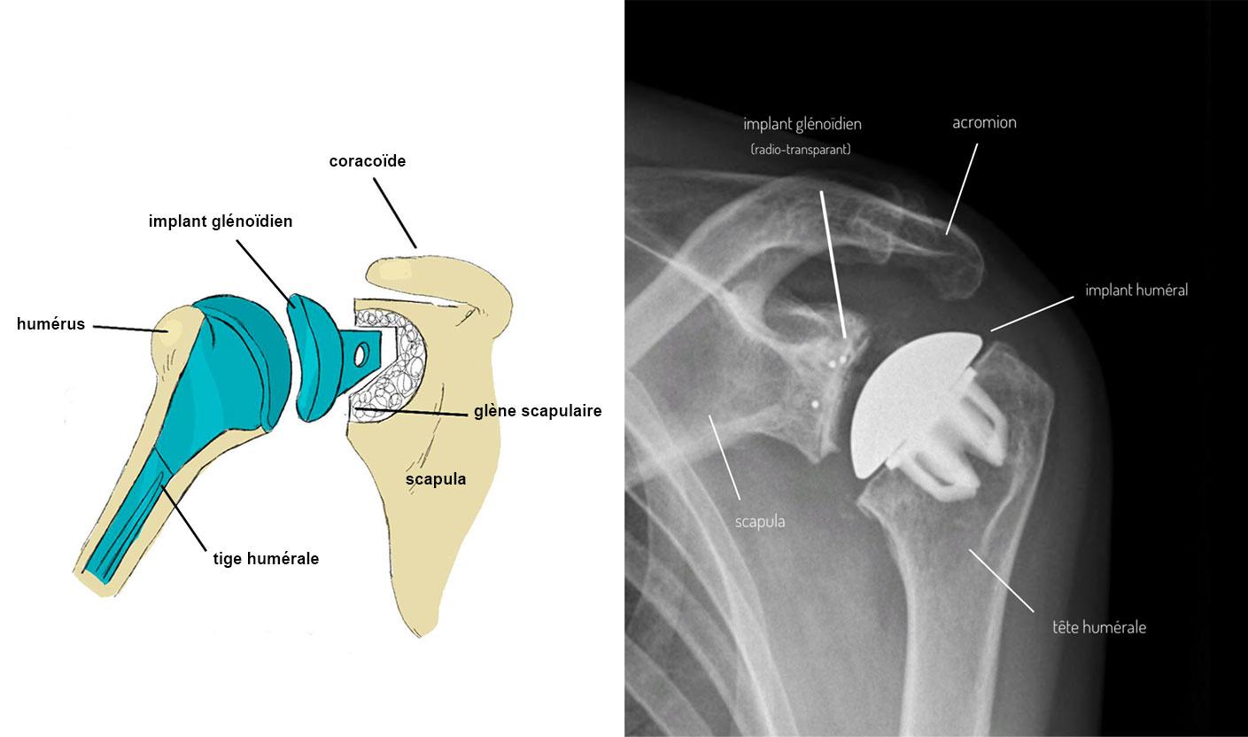 prothese-anatomique-epaule